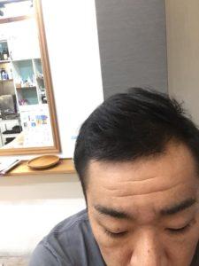 髪の毛の写真です